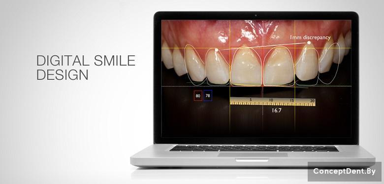 стоматология отбеливание зубов zoom