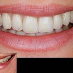 протезирование зубов в белоруссии