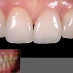 протезирование зубов в могилеве