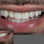 лечение зубов в беларуси