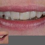 лечение зубов в белоруссии