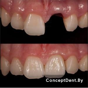 протезирование зубов на имплантах,