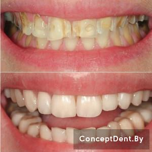 коронка на зуб цена