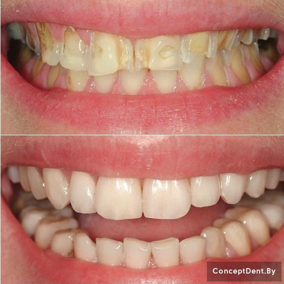 Циркониевый зуб имплант
