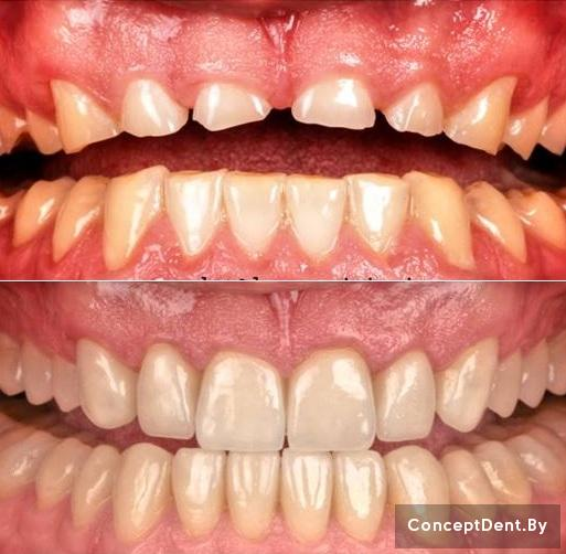 виниры на зубы цена саранск