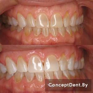otbelivanie_zubov_zoom