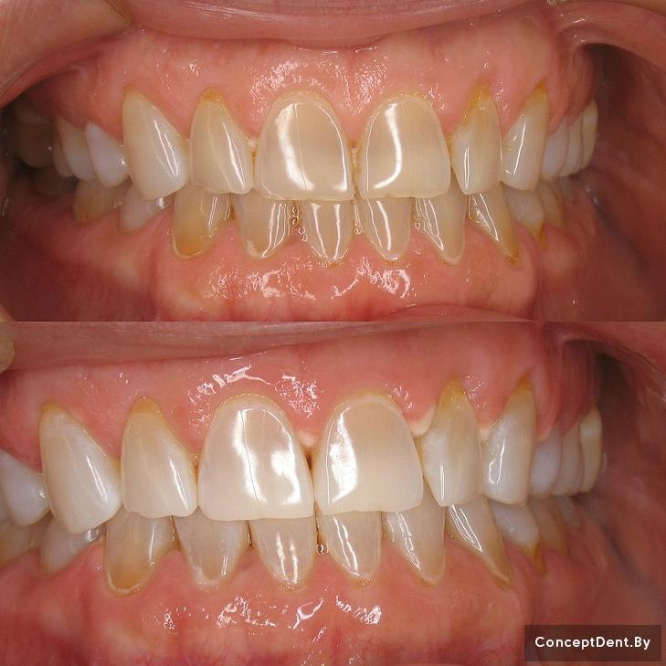 zoom отбеливание зубов