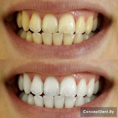 отбеливание зубов светом