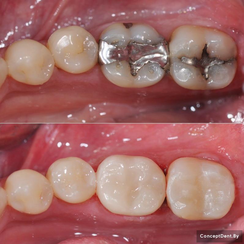 лечение зубов в могилеве