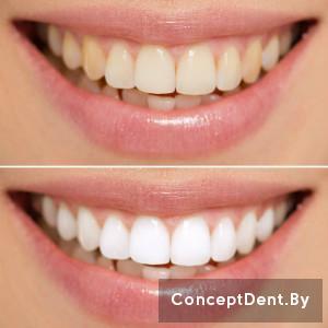 professionalnoe_otbelivanie_zubov