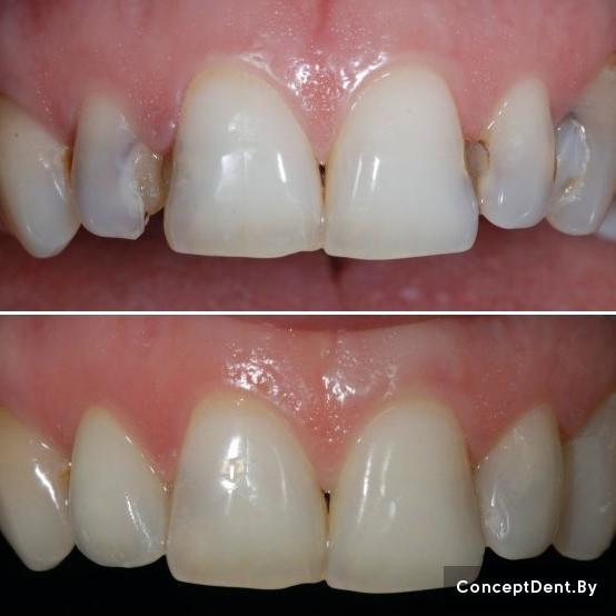 художественная реставрация зубов,   реставрация зубов,  эстетическая реставрация зубов,   реставрация передних зубов,  эстетическая реставрация передних зубов