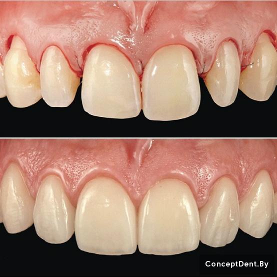 керамические виниры цена на один зуб
