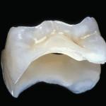 керамические вкладки на зубы,
