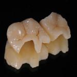 зубные вкладки