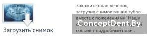 zagruzit_snimok2